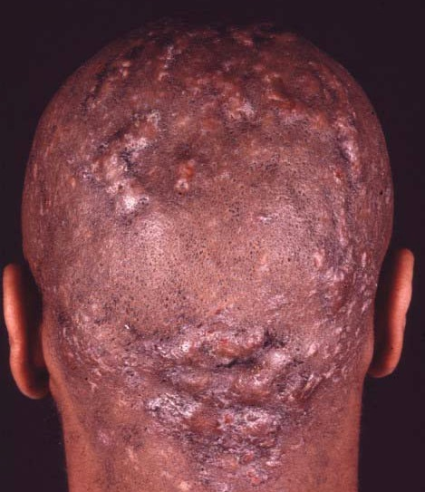 Personal Redness around penis head opinion