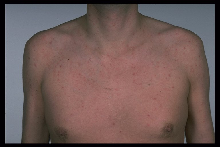 Common Skin Infections Common Skin Infections