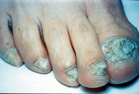 extensive tinea unguium toe nails